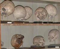 Koponya-gyűjteményünk (normális és pathológiás koponyák)