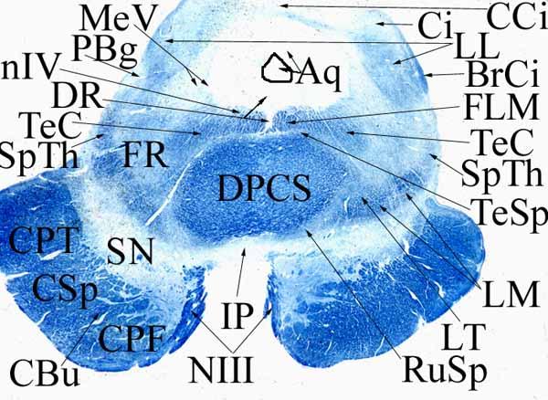 5. Középagy a colliculus inferior magasságában (a szövettani jegyzet ábrájának kb. megfelelő metszet).