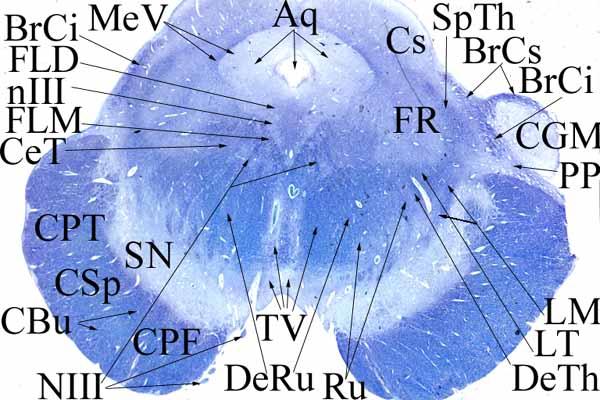 6. Középagy a colliculus superior alsó szélénél (a nucleus ruber éppen kezd megjelenni).