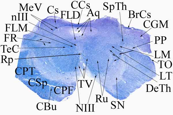 7. Középagy a colliculus superior felső szélénél (a nucleus ruberen át).