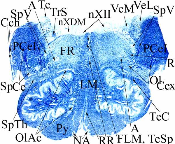 4. Nyúltvelő nyitott része, kevéssel a híd ill. a nucleus N.VII alatt (a recessus lateralis itt már áthajlik a pedunculus cerebellaris inferioron).