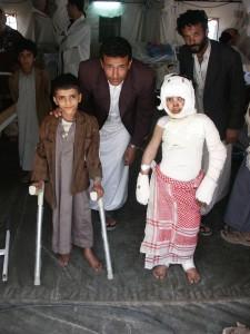 Osteomyelitis és égés-Jemen