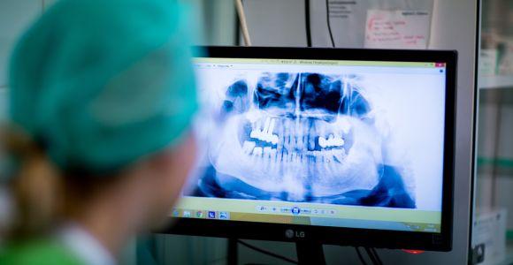 Cukorbetegeknél nagyobb eséllyel alakul ki rosszindulatú szájüregi daganat