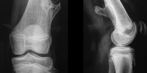 A csontdaganatok leggyakoribb típusai