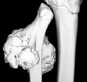 jóindulatú csontdaganat